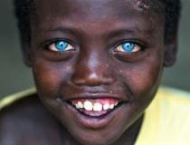 Aos 8 anos de idade, ele é criticado e se sente discriminado pela cor azul dos olhos