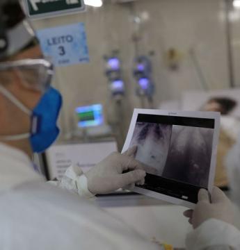 Associações médicas lançam protocolo para triagem de pacientes de UTI