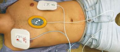 Cardiômetro: quase 290 mil pessoas já morreram por doenças cardiovasculares no Brasil em 2021