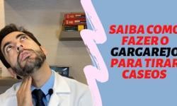 Saiba como fazer a LIMPEZA PARA RETIRAR OS CÁSEOS de suas amígdalas - Dr. Paulo Mendes Jr