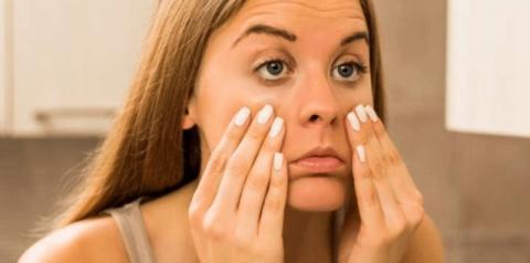 Tratamento para olheiras: Conheça 5 formas de eliminar o problema