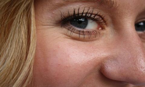 Envelhecimento da pele: tem como prevenir?