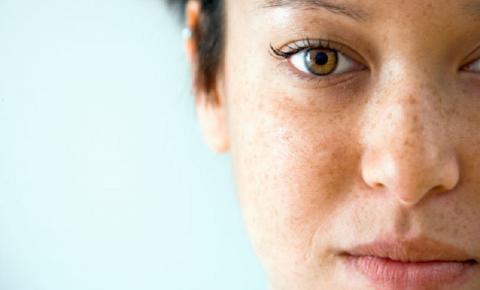 Manchas de sol na pele: O que fazer para evitar e como tratar?