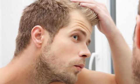 Entradas no cabelo é normal? Entenda porque elas aparecem