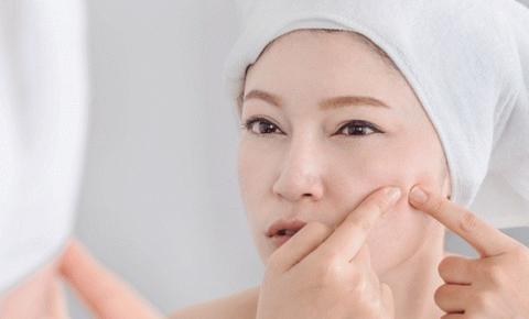 Acne em mulheres adultas: Saiba quais os tratamentos mais adequados para tratar o problema em peles maduras