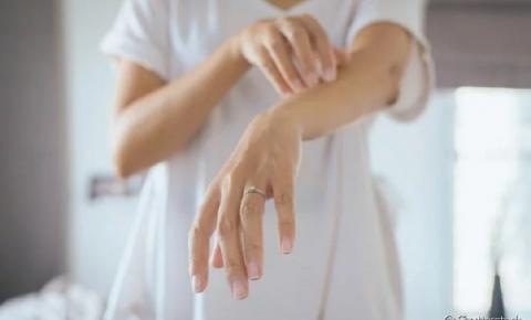 Pano Branco na Pele: Como tratar o problema + dicas para prevenir a micose