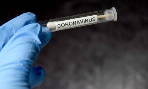 Testes rápidos de detecção do coronavírus podem ser até 75% falhos