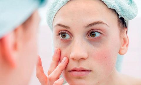 Olheiras profundas: Como cuidar da região dos olhos ajuda a tratar o problema