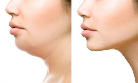 Papada: dermatologista fala da prevenção e redução do problema