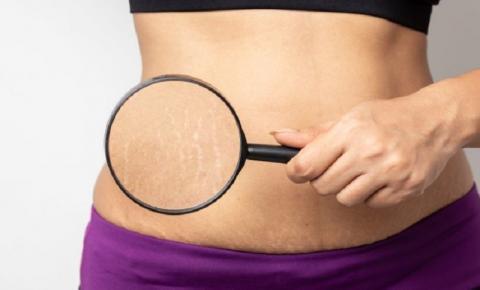 Carboxiterapia: o que é? Saiba como o método pode ajudar no tratamento de celulite, estrias e flacidez na pele