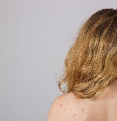 Manchas Vermelhas na Pele: O que pode ser e como cuidar?